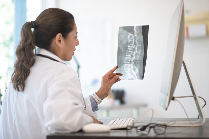 A Doctor Reviewing X-ray Results stock photo
