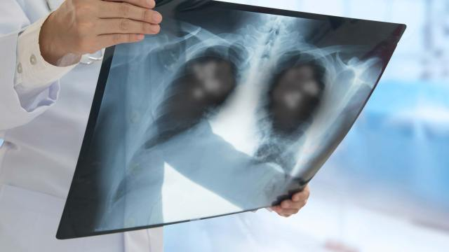 are you at risk for lung cancer